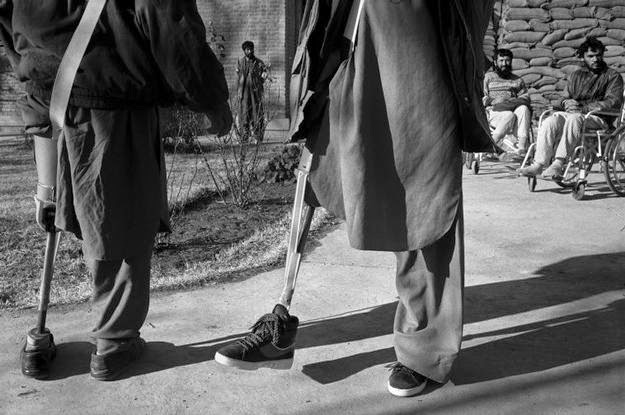 AFGHANISTAN. 1994. Kabul. Trying out artificial limbs at ICRC clinic in Kabul.